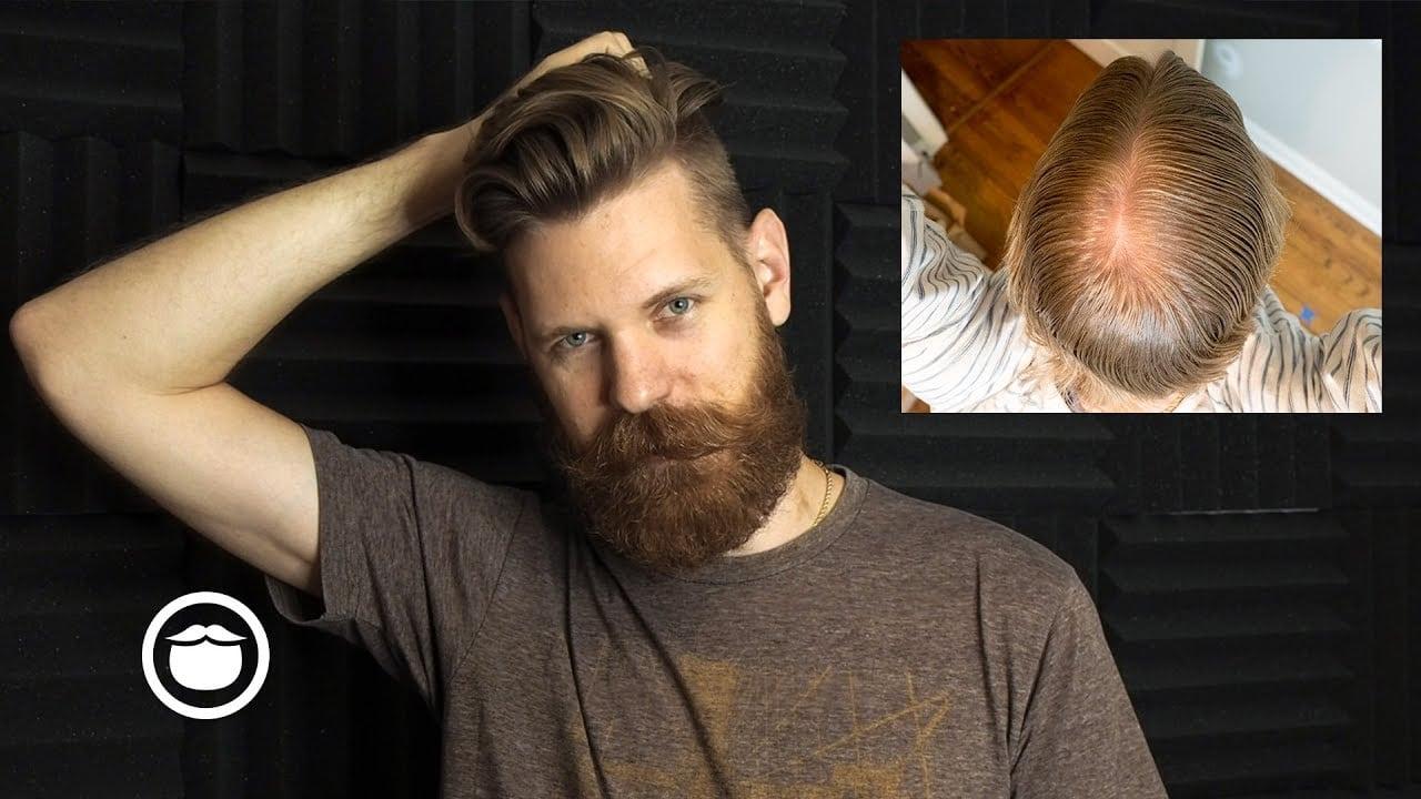 Етапи за присаждане на коса