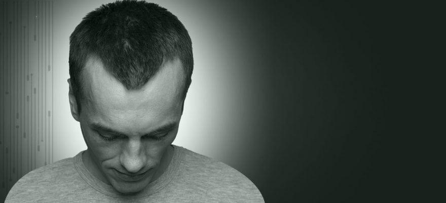 Защо да изберем присаждане на коса