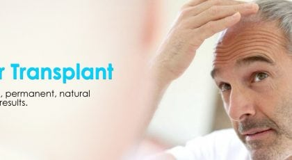 Колко успешно е присаждането на коса?
