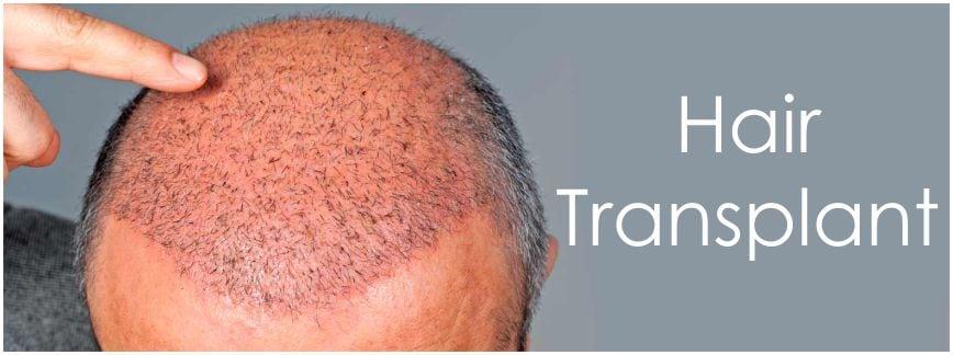 Искате присаждане на коса - готови ли сте да си присадите коса