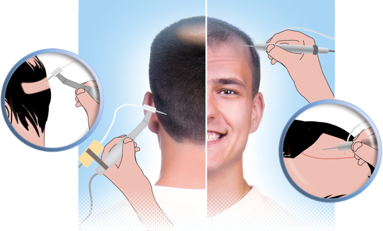 Какво да очаквате след присаждане на коса