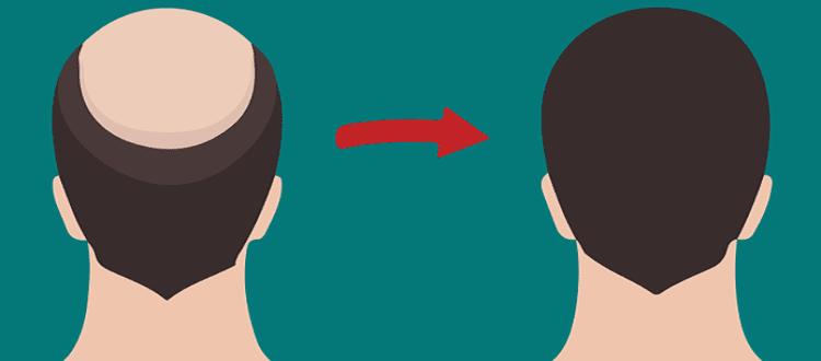 Кога е най-добре да се направи присаждане на коса?