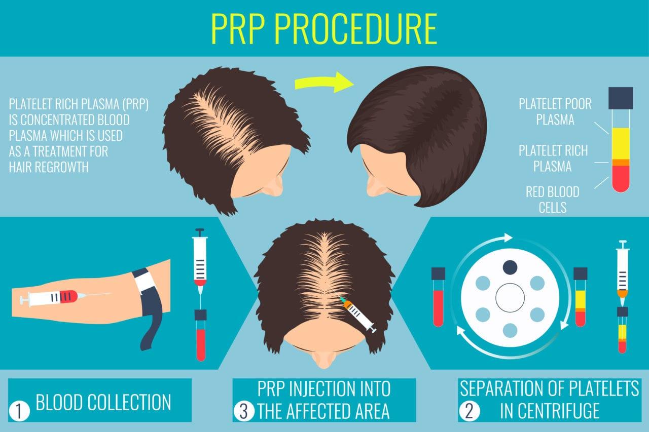 prp терапия или присаждане на коса